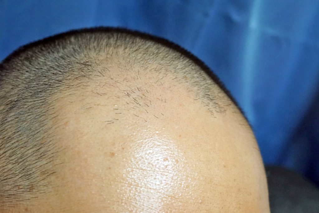 [AGA(男性型脱毛)]男性ホルモンが原因となる脱毛や薄毛