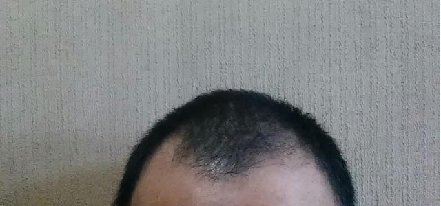 [アセチルテトラペプチド-3]育毛成分のミノキシジルの3倍の育毛効果がある成分
